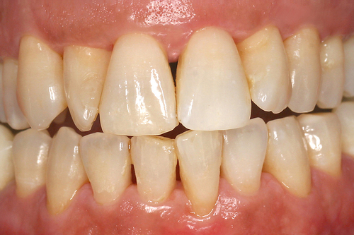 traitement laser assist pour les dents d chauss es parodontite dentiste dr g rard rey. Black Bedroom Furniture Sets. Home Design Ideas